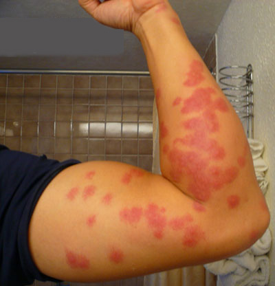 Bites Like Bed Bug Bites